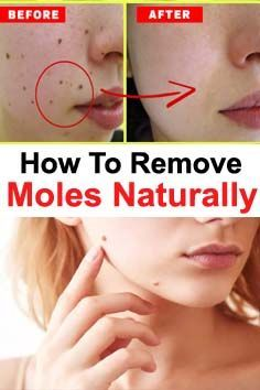 How To Remove Moles Naturally In 2020 Mole Removal Skin Moles Moles On Face