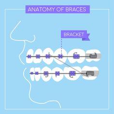 ¿Sabías que... hay 3 tipos diferentes de brackets? Hay metálicos, de cerámica y de plástico.  Su función es fundamental ya que mantienen al arco en su lugar y su posición determina cómo se irán moviendo tus dientes en conjunto con los elásticos (ligas).