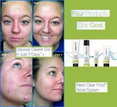 The best skin clearing set out there and it's backed by a 100% guarantee!   Www.marykay.com/lsmith928