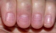 Nail Problems, Health Problems, Fingernail Ridges, Fingernail Health, Nail Health Signs, Turmeric For Skin, Mens Nails, Nail Care Tips, Nail Plate
