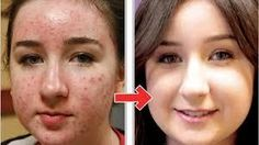 We all want spotless skin that really looks beautiful.But when gets some scars caused by acne.we want to cure them immediately. And then we start to find How To Get Rid Of Acne Scars Fast or How to remove pimple scars, How to treat acne scars, Best scar How To Remove Pimples, Remove Acne, How To Get Rid Of Acne, Scar Removal Home Remedies, Acne Scar Removal, Melaleuca, Secura, Cystic Acne Remedies, Pimple Scars