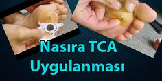 Nasıra TCA Uygulanması Children, Boys, Kids, Big Kids, Children's Comics, Sons, Kid, Kids Part, Child
