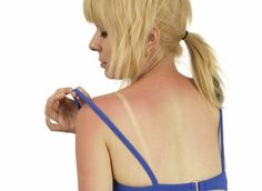 9 natuurlijke manieren om je verbrande huid te verzachten