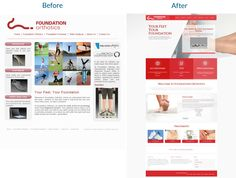 Foundation Orthotics #Redesign.  Website transformed into a responsive and engaging #landingpage. #website #websiteredesign #webdesign #designinsperation #rethinkyourwebsite #layout #redesign #redesignideas #redesigninspiration #creative #landingpages #beforeafter #responsive #leadgeneration