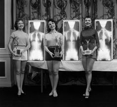 No slouchers here, ma'am! Just winners of the Miss Correct Posture beauty pageant. In the 50s and 60s, American chiropractors held a series of rather unusual beauty pageants where contestants were judged and winners picked not only by their apparent beauty and poise, but also their standing posture. Contestants Marianne Baba (L), Lois Conway (M) and Ruth Swenson (R) posing with their trophies and X-rays. Photo: Wallace Kirkland/LIFE via Google LIFE Archives