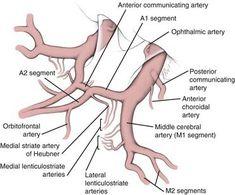 Image result for middle cerebral artery, lateral striate artery, or the medial striate artery