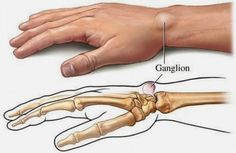 There are natural remedies for ganglion cysts and you can find some of them here. They will help your tendons and joints. Our tendons and joints often suffer from ganglion cysts which are small, rounded bags filled with viscous and dense liquid. Natural Home Remedies, Natural Healing, Herbal Remedies, Health Remedies, Health And Beauty, Health And Wellness, Health Tips, Ganglion, Lipoma Removal