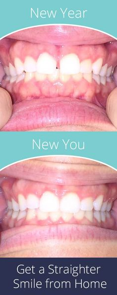 You can have the smile you've always wanted for up to 70% less than other options with SmileCareClub. Get started with your free smile assessment and risk-free evaluation today. New year, new you.