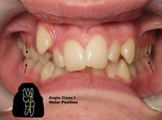 The great news is that dental malocclusions like this can be corrected with orthodontic treatment Dental Braces, Dental Care, Crooked Teeth, Orthodontics, News, Art, Art Background, Dental Caps, Kunst