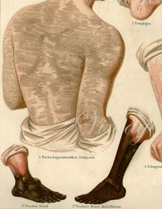 1890s Human SKIN. 1. Ichthyoisis.
