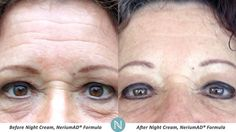 Look as young as you feel again with NeriumAD!