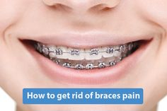 How to get rid of braces pain How to get rid of braces pain: Orthodontic devices are devices that have been designed to straighten or realign people's teeth. Although the results are not immediate, once the person sees the final result, she will likely forget any inconvenience or...
