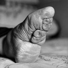 Con questo nome suggestivo e poetico si intende in realtà la dolorosa pratica della fasciatura dei piedi in voga in Cina fino a qualche decennio [...]
