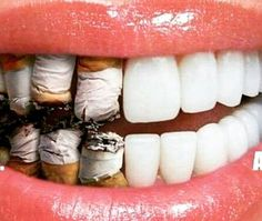 The effects of smoking increases your risk of cavities & other oral problems.