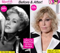 PICS] Kim Novak's Face — See Photos Of Her Shocking Transformation ...