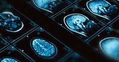 Tratando la depresión entrenando la amígdala http://ift.tt/2onyi5n