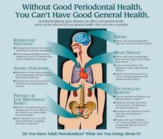 Dental Hygiene School, Dental Humor, Dental Hygienist, Dental Assistant, Dental Implants, Oral Hygiene, Dental Surgery, Gum Health, Dental Health