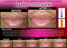 This is the 6th model for this amazing natural Lip Plumper! See all the other Before and After pics and buy it at: www.devotedthings.com