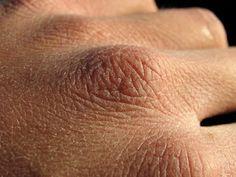 pour soigner les crevasses, fissures ou gerçures des mains dues au froid de l'hiver , je vous conseille de tester la recette suivante pour avoir des belles mains même en hiver.