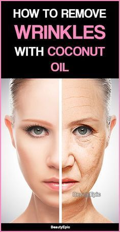 How to Remove Wrinkles with Coconut Oil? Coconut oil is known to be one of the popular massage oil especially for facial skin. Here we discussed home based methods to use coconut oil for wrinkles Beauty Care, Beauty Skin, Health And Beauty, Beauty Hacks, Beauty Tips, Diy Beauty, Beauty Makeup, Beauty Quotes, Beauty Box