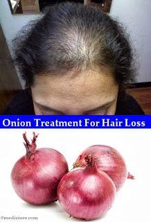 Hair Loss - Onion Treatment For Hair Loss