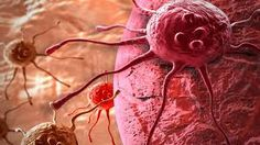 """Tan solo oír la palabra """"cáncer"""" y nos causa mucho temor. Es considerada actualmente como una de las enfermedades más graves y peligrosas de la actualidad. De hecho, el cáncer se asocia de inmediato con la muerte, porque en muchos casos, los pacientes pierden la vida en pocos días ante esta enfermedad tan fulminante."""