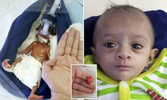 Manushi, from Rajasthan, India, who measured 8.6 inches long, is thought to be the smallest surviving baby born in Asia. She arrived not breathing, with paper-thin skin and underdeveloped organs.