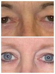 plastic surgery for eyelids including eyelift blepharoplasty to locate a doctor or surgeon