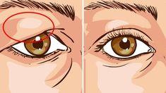 Смотреть на мир молодо: как подтянуть верхние веки - несколько полезных советов Drooping Eyelids, Droopy Eyes, Skin Tightening, Skin Firming, Cellulite, Tighten Loose Skin, Get Rid Of Warts, Skin Tag, How To Treat Eczema