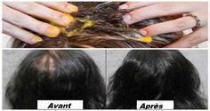 Voulez-vous que vos cheveux poussent plus rapidement?Etes-vous gêné par la perte de vos cheveux ? Si oui, vous êtes au bon endroit. Cet article présentera une formule magique qui stimulera la croissance de vos cheveux qui vont pousser aussi follement que vous n'avez jamais imaginé! Recette: Ingrédients: 2 bananes 1 jaune d'oeuf 1 cuillère à …