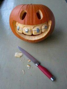 Pumpkin with braces Braces, Halloween Pumpkins, Halloween Diy, Halloween Decorations, Ideas, Pumpkin Carving, Halloween Gourds, Carving Pumpkins, Halloween Prop