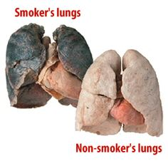Reason # 8,012,348 to quit smoking