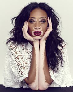 BlackCleopatra: Winnie Harlow: Beauty Is In Everything... Try Loving Yourself!