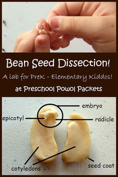 Dissect a Dicot Bean Seed Lab! | Preschool Powol Packets. A typical seed has three  basic parts: an embryo, the seed coat and a temporary food  supply. The epicotyl will eventually develop into the leaves of the plant. The radicle is the embryonic root of the plant, and grows downward in the soil.