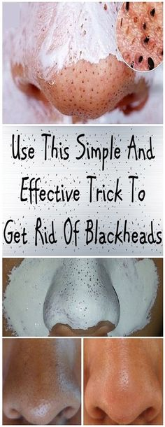 How to get rid of Blackheads naturally Blackheads are scientifically known as Open Comedo. This pro - How to get rid of Blackheads naturally Blackheads are scientifically known as Open Comedo. Health Tips For Women, Health And Beauty, Health Advice, Herbal Remedies, Natural Remedies, Health Remedies, Beauty Care, Beauty Hacks, Beauty Secrets