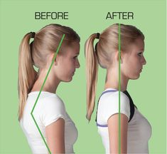 Carrying your head forward leads to tense neck muscles and pain.