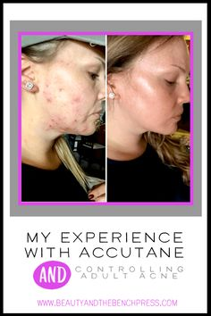 Skin Acne Remedies My experience and before and after results while on accutane to control adult acne. In this post I outline my results, the side effects and my skin care survival tips while using Accutane Accutane Before And After, Banana Face Mask, Aloe Vera Face Mask, Acne Scar Removal, Dark Lips, Dark Skin Tone, Sagging Skin, Dull Skin, Acne Remedies