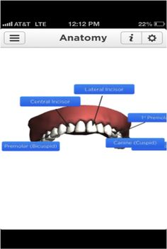Dental Decide App - There is an error on the anatomy screen labeling; the lateral Incisor label pointing to the central incisor and visa versa.