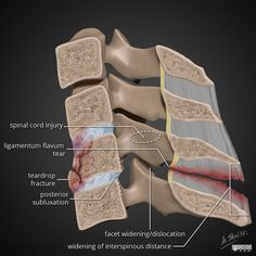 Flexion teardrop fractures represent a fracture pattern occurring in severe axial/flexion injury of the cervical spine. They are important to recognize because they indicate extensive underlying ligamentous injury and spinal instability. Palmer College Of Chiropractic, Anatomy Images, Skull Anatomy, Spinal Cord Injury, Radiology, Medical Illustrations, Medicine, Trauma, Nursing
