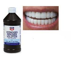 Hydrogen Peroxide Mouthwash