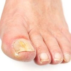 Treat Toenail Fungus!  If you have a toenail fungus problem come to Beautiful T