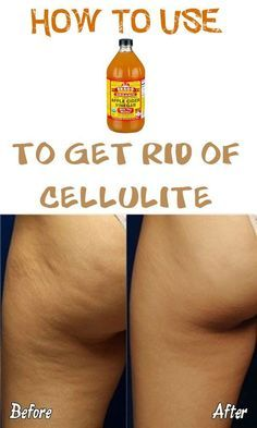 How to use apple cider vinegar to get rid of cellulite