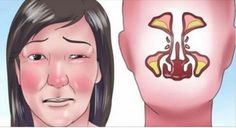 Stuffy Nose Remedies With cold season upon us, there's no better time to learn how to get rid of a stuffy nose. - With cold season upon us, there's no better time to learn how to get rid of a stuffy nose. Home Remedies For Flu, Flu Remedies, Natural Home Remedies, Holistic Remedies, Remedios Congestion Nasal, Nasal Congestion, How To Unblock Nose, Clear Stuffy Nose, Paranasal Sinuses