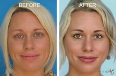She Got Tired Of Putting On Makeup Every Day, So She Had This Painful Procedure