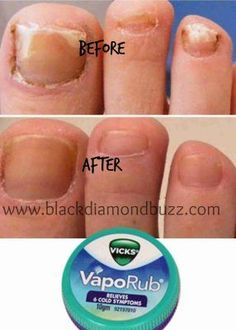 1803 Best Nail Fungus Vicks images | Toenail fungus treatment, Fungi ...