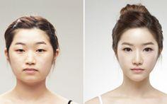 Korean Plastic Surgery to have A Beautiful Look #aestheticsurgeryinkorea #aestheticsu