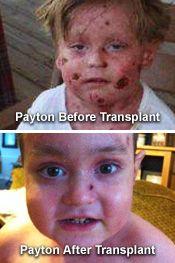 Payton's BMT Story