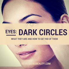 How to get rid of bags and dark circles under the eye Beauty Bar, Beauty Skin, Dark Circles Under Eyes, Puffy Eyes, Look Younger, Beauty Hacks, Beauty Tips, Home Remedies