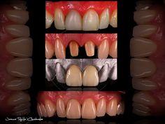 Poprawa estetyki przednich zębów za pomocą ultra cienkich koron pełnoceramicznych