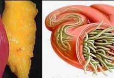 Si vous êtes à la recherche d'une recette qui vous aidera à vous débarrasser des parasites et des graisses superflues accumulées dans votre organisme, sans devoir vous affamer pendant des semaines, nous avons la solution ! Une recette faite maison, à base d'ingrédients 100% naturels qui purifieront votre corps et vous aideront à éliminer vos …